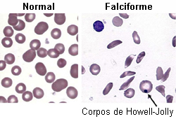 Anemia falciforme images