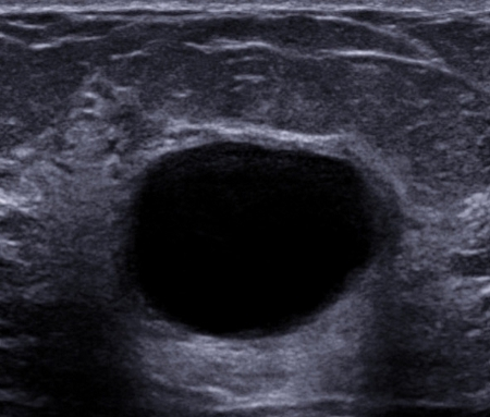 Fibrocystic breasts images