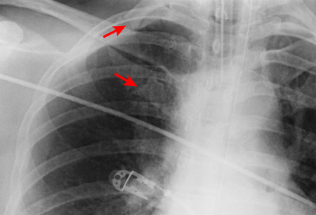 how to know if rib fracture