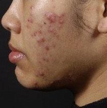acne nodulocystica