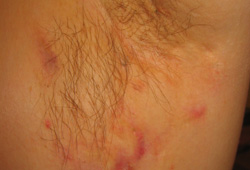 Hidradenitis suppurativa images