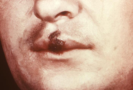 Assessment of psychosis images