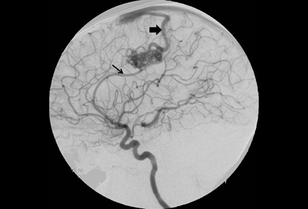 Cerebral arteriovenous malformation images