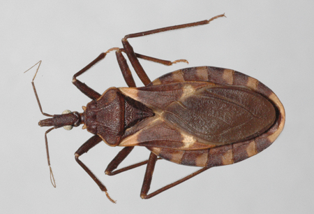Chagas disease images