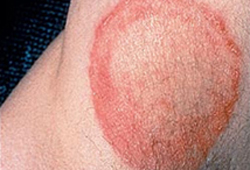 Dermatophyte infections images