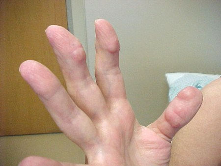 reuma noduli long