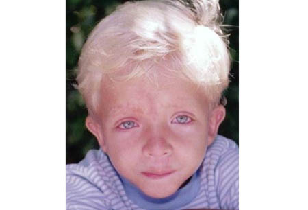 Noonan syndrome images