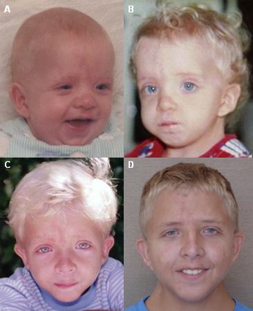 Noonan syndrome - Images | BMJ Best Practice US