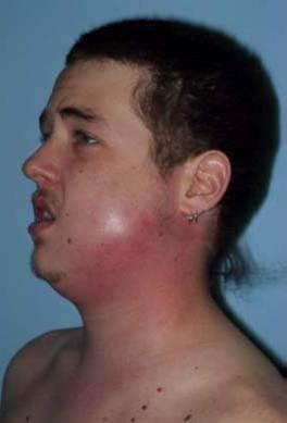 Facial cellulitis dental abscess rather