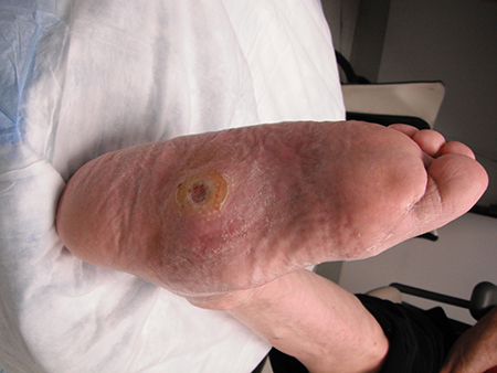Diabetic foot complications images