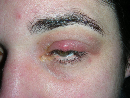 Stye and chalazion images