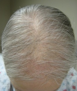 Androgenetic alopecia images