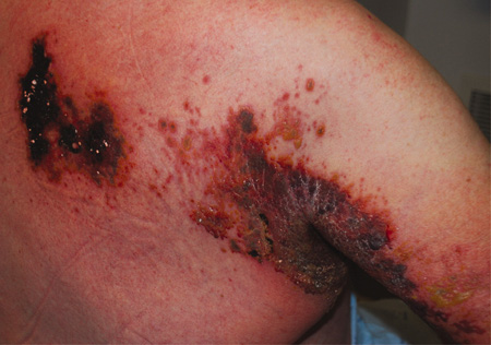 Herpes zoster infection images