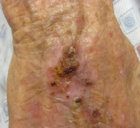 Squamous cell carcinoma of the skin images