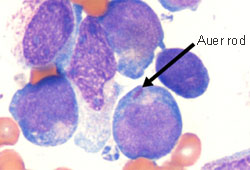 leukemia acute myelogenous peripheral smear aml blood blasts auer myeloid rod bmj normal diagnosis symptoms differentials lymphocytic bestpractice hlight