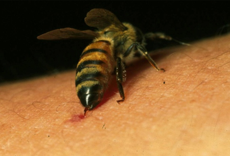 Insect bites and stings - Symptoms, diagnosis and treatment