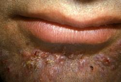 Folliculitis Symptoms Diagnosis And Treatment Bmj Best Practice