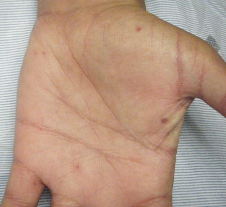 Systemic sclerosis (scleroderma) - Approach | BMJ Best ...