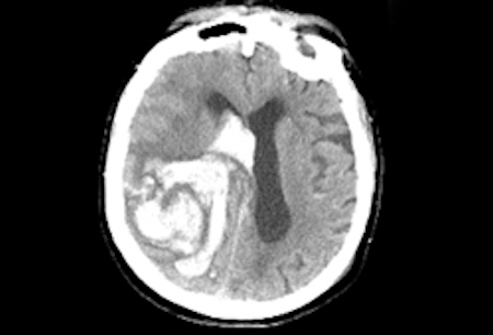 Stroke due to spontaneous intracerebral haemorrhage images