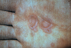 Erythema multiforme images
