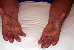Carpal tunnel syndrome images