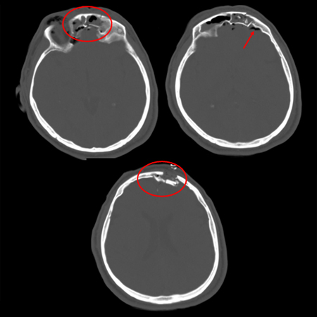 Comminuted depressed fracture of the frontal sinus with air, fluid, and bone fragments in frontal sinus and pneumocephalus; level of depression greater than width of cortex