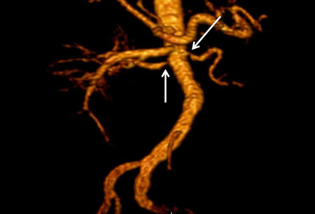 Renal artery stenosis images