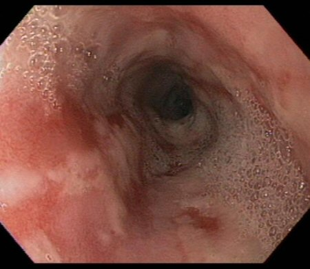 Assessment of upper gastrointestinal bleeding images
