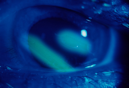 Corneal abrasions images