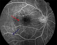 treatment of diabetic retinopathy guidelines