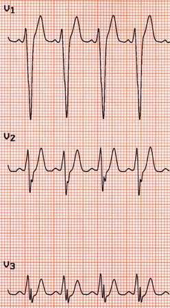 Evaluation of palpitations images