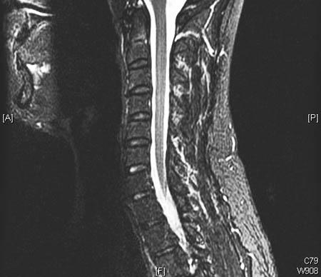 Degenerative cervical spine disease - Symptoms, diagnosis and ...