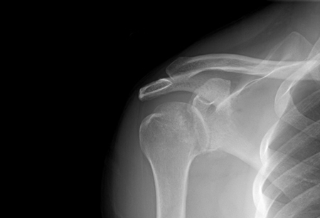 Joint dislocation images