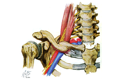 Thoracic outlet syndrome images