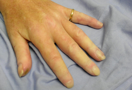 Limited cutaneous systemic sclerosis images