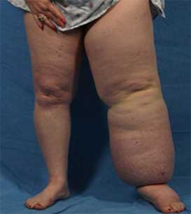 Lymphedema images