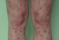 Assessment of pruritus images