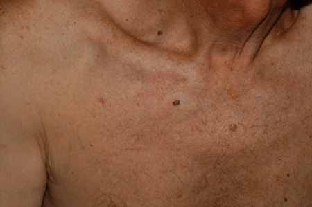 seborrheic keratosis symptoms diagnosis and treatment bmj best