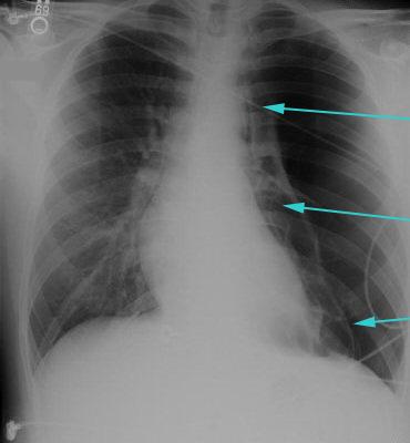Assessment of pleuritis - Urgent considerations - BMJ Best..