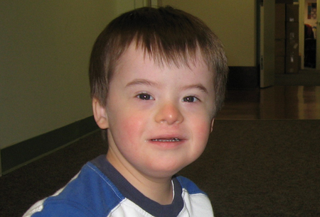 Down syndrome images
