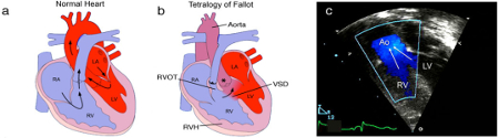 Tetralogy of Fallot images