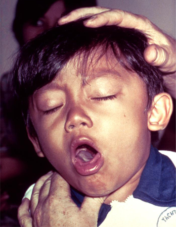Diphtheria images