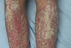 Psoriasis - Symptoms, diagnosis and treatment | BMJ Best Practice