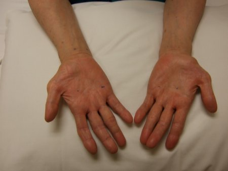 Evaluation of upper extremity mononeuropathy images