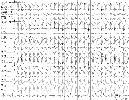 Generalised seizures in children - Approach | BMJ Best Practice