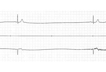 Bradycardia - Approach...