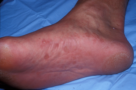 Assessment of dermatological disorders in HIV - Approach   BMJ Best