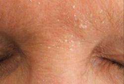 Seborrheic dermatitis - Symptoms, diagnosis and treatment | BMJ Best