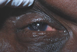 Trachoma images